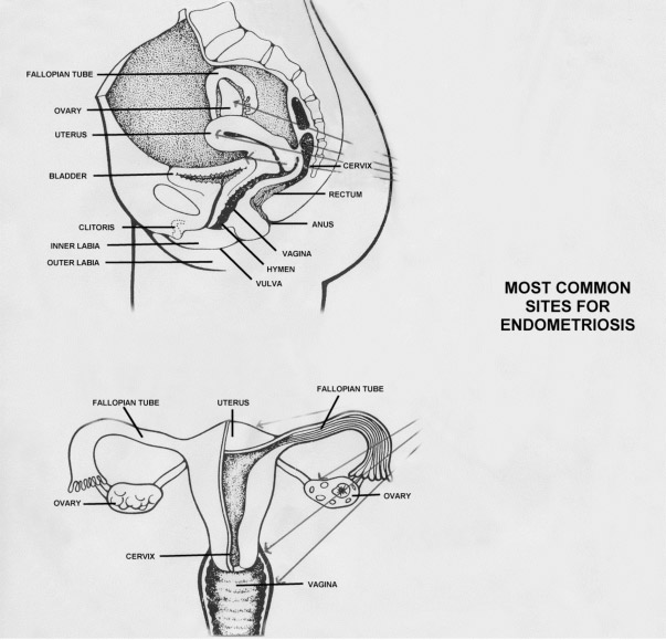 Where Does Endometriosis Occur | Gynaecology Molloy